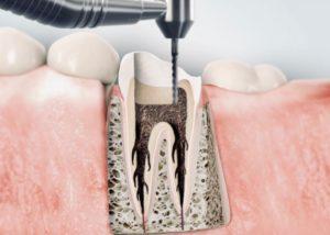 Wurzelkanalbehandlung Zahnarztpraxis Dr. Sebastian Fiedler in München